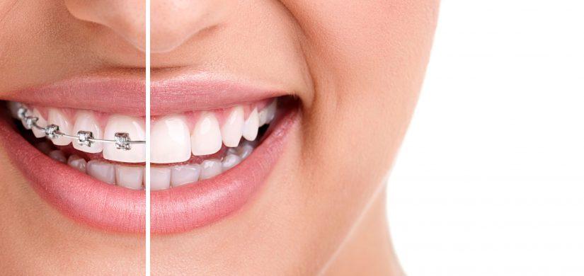 ortodonzia-Latina_web